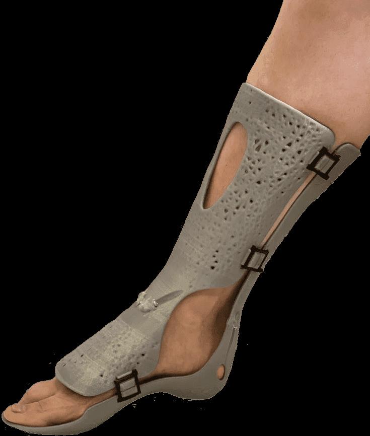 CastPrint for leg fractures